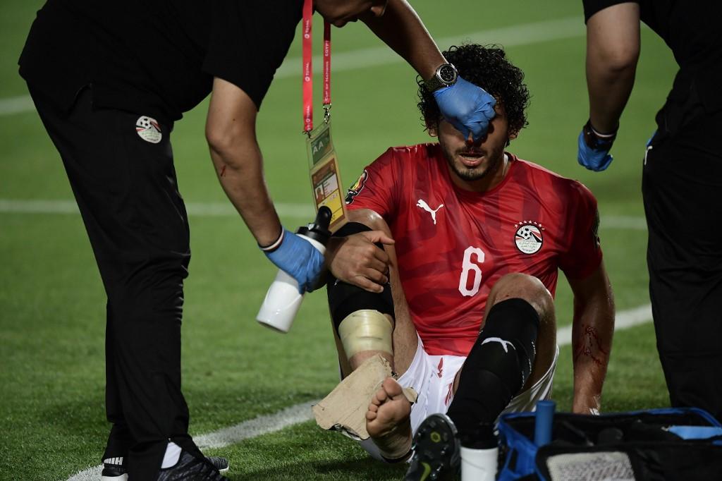 الأشعة تثبت إصابة حجازي مدافع مصر بكسر في الأنف